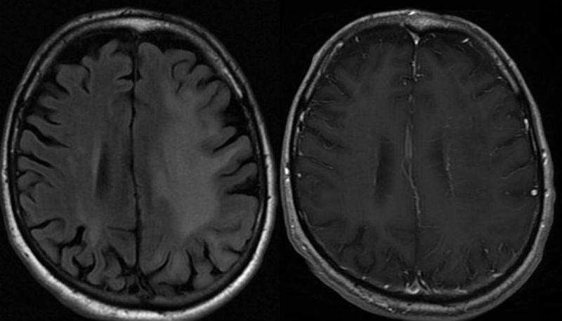 Non-IRIS PML survivor brain